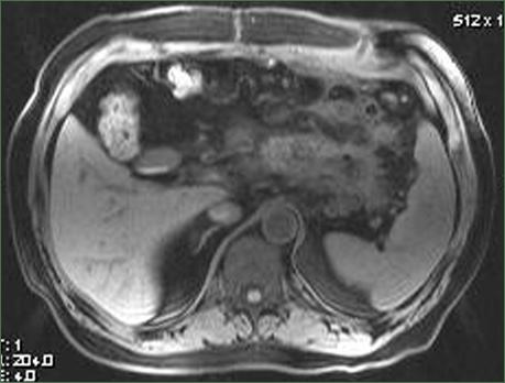 Магнитно-резонансная томография в диагностике панкреатитов