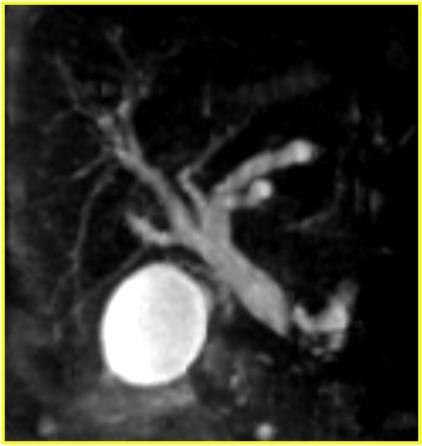МРТ органов брюшной полости
