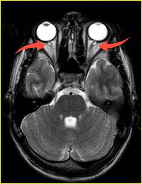 Внутричерепная гипертензия: клиника, диагностика, возможности МРТ