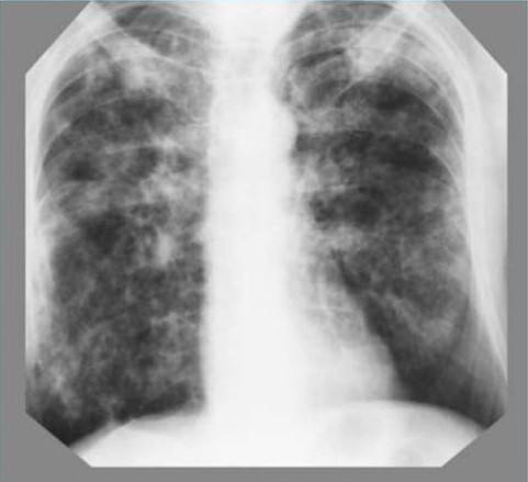 Туберкулёз легких на рентгеновских снимках