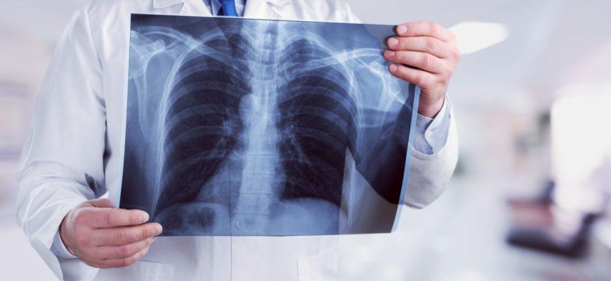 рентген-мифы и правда