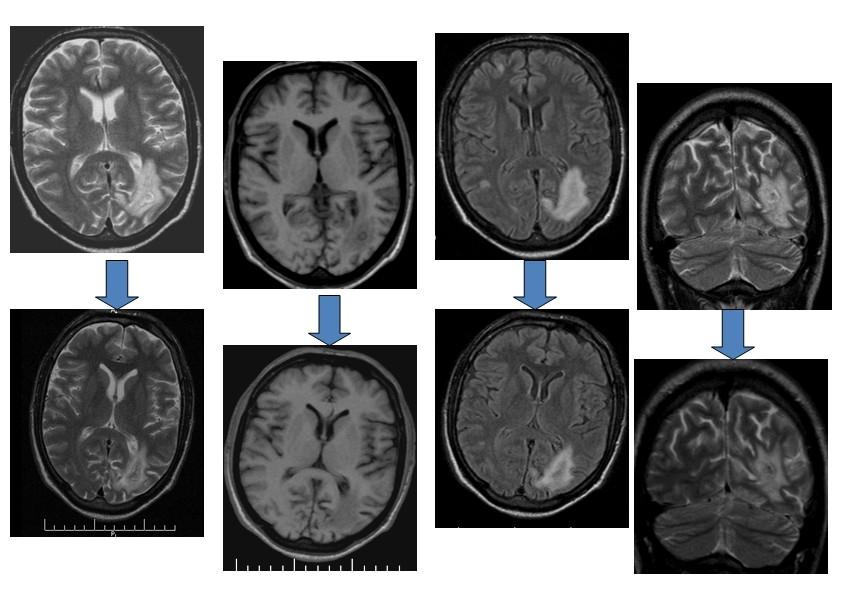 Поражение головного мозга при ВИЧ инфекции