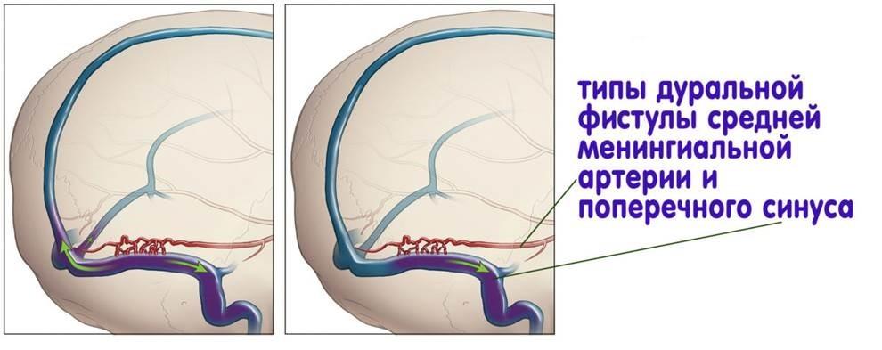 Артериовенозная мальформация. Артериовенозная фистула