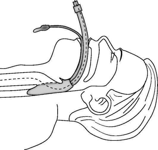 http://vmede.org/sait/content/Anatomija_topograficheskaja_sukov_xir_bol_2008/21_files/mb4_017.jpeg