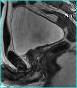Лучевая диагностика заболеваний предстательной железы
